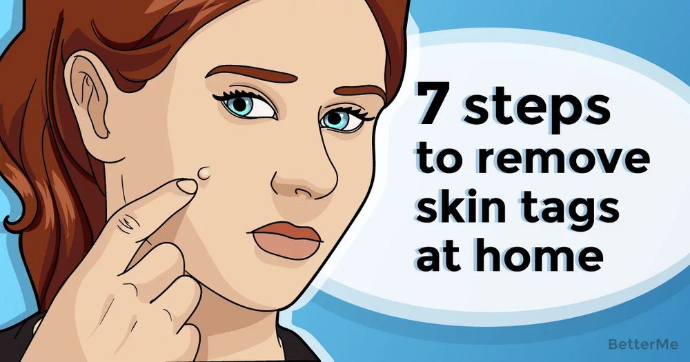 7 steps to remove skin tags from your face at home