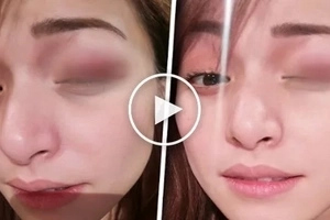 You will be shocked when you find out who kicked Christine Reyes causing an ugly bruise on her left eye