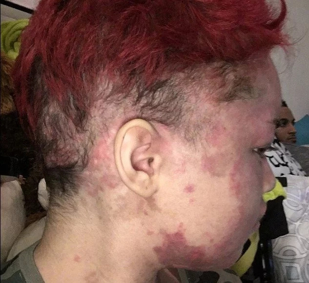 Woman's Skin Burns From Inside Out Every Time She Goes Outside (Photos)