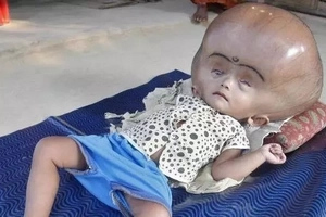 LOOK! Her parents thought she would die, what happened three years after will shock you!