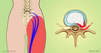 2 simple ways to release pinched nerve in the lumbar area