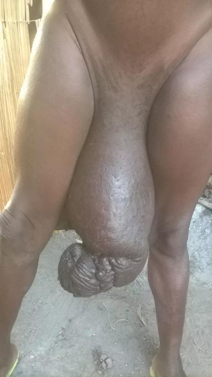 Jamaa mwenye ugonjwa wa kustaabisha kwenye uume wake