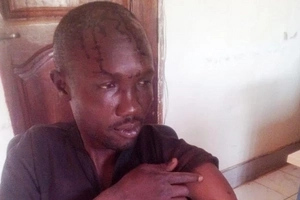 Wife goes BERSERK over 'bride price' and beats husband to a pulp (photo)