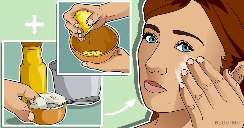 10 home remedies for acne and pesky pimples