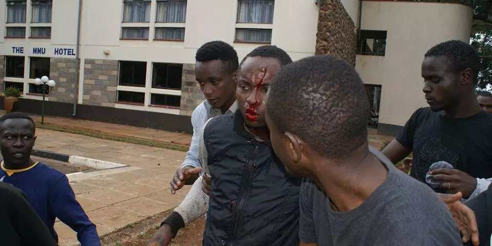 Six injured in the Multimedia university protests in Rongai