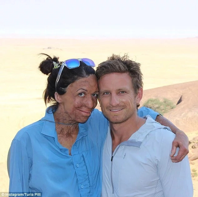 Turia Pitt and her fiancé Micheal. Photo: Instagram/Turia Pitt