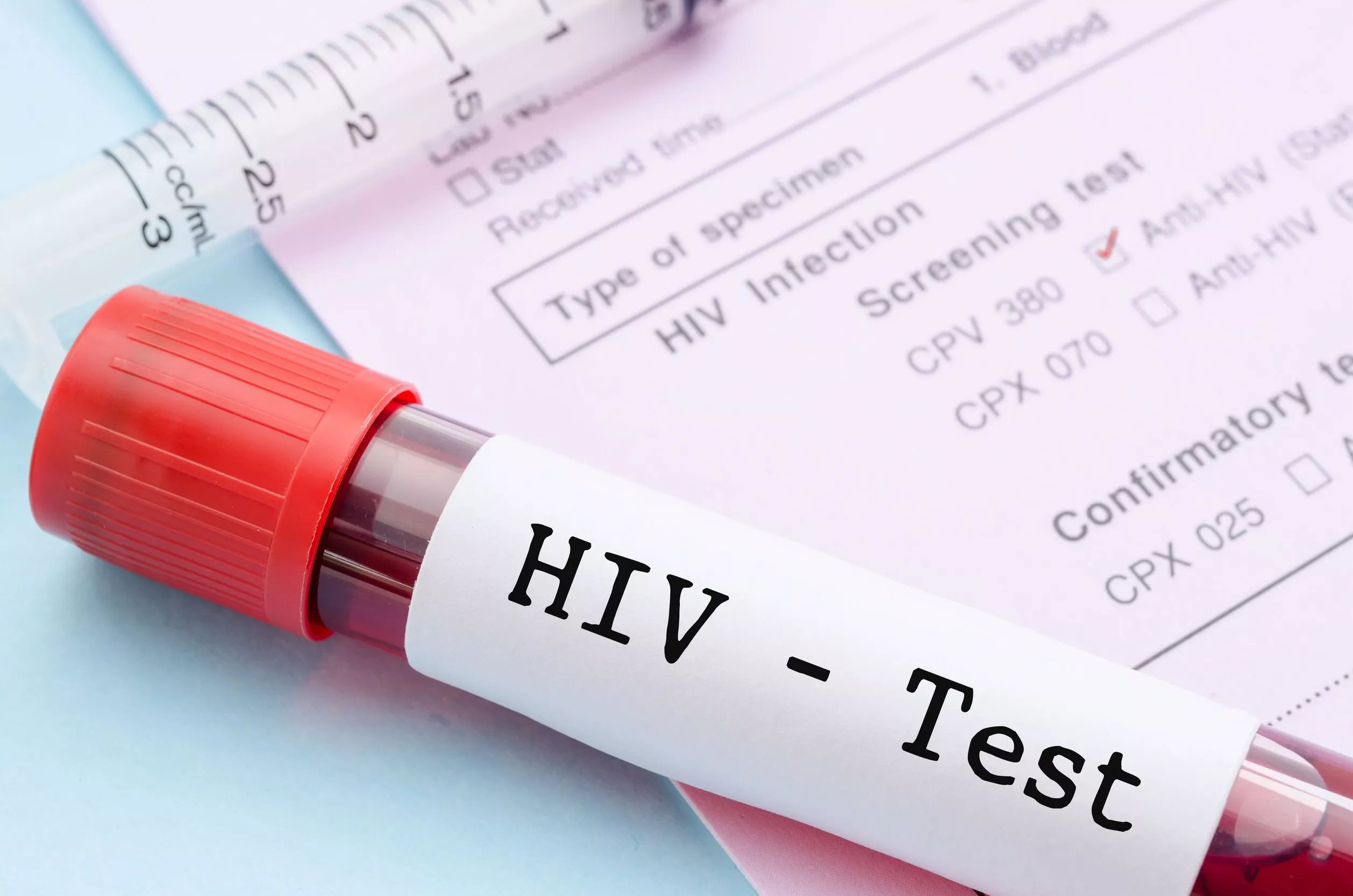 Early Signs of HIV in Men: What Symptoms Should You Look out For?