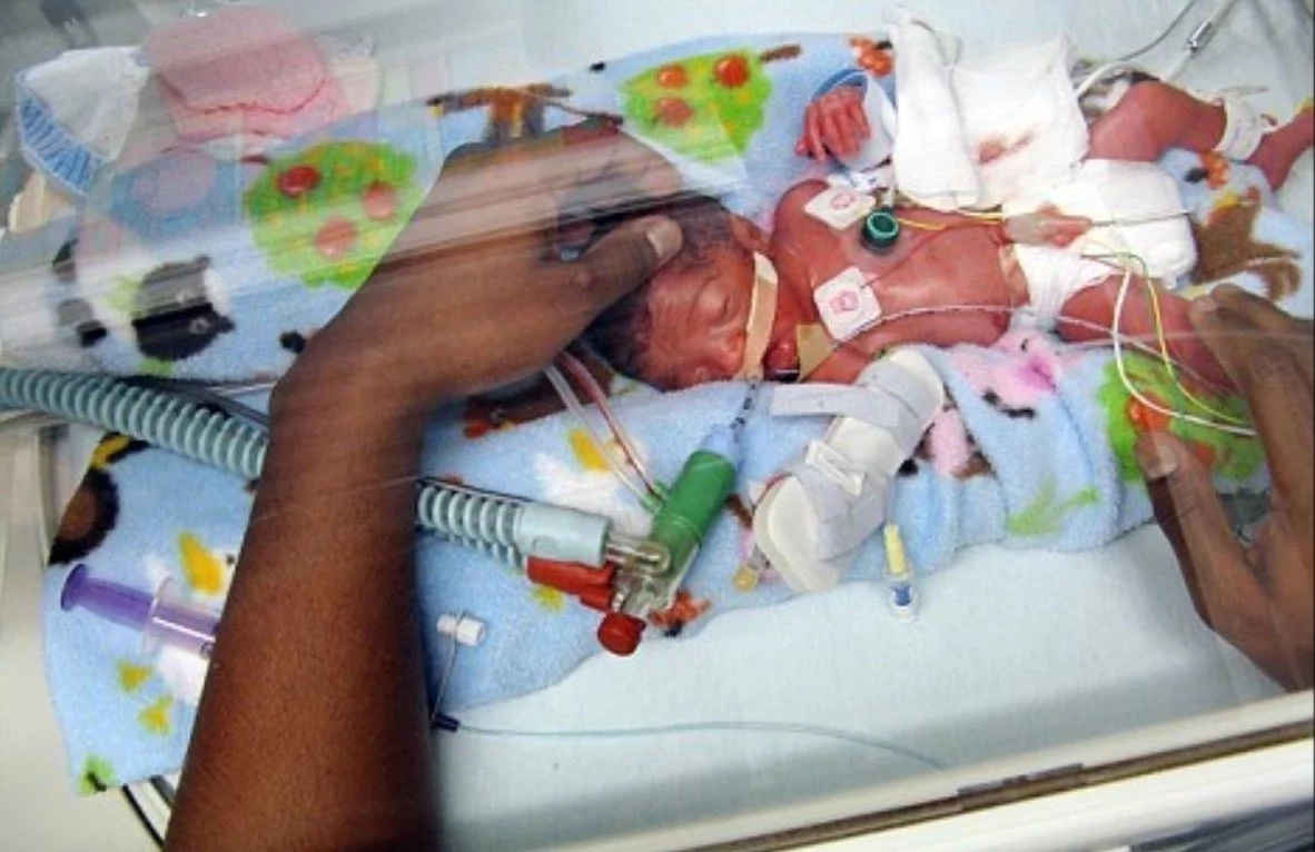 Miracle baby with half a heart was resuscitated three times but still keeps on fighting