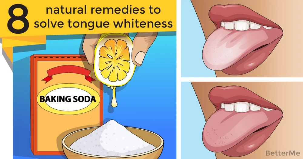 8 natural remedies to solve tongue whiteness