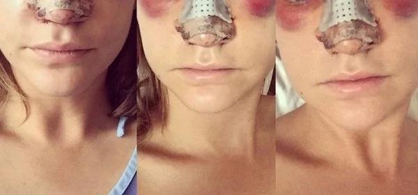 plastic-surgery