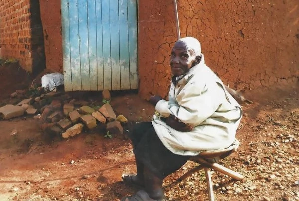Njerica Mukazaana has had the condition for 15 years. Photo: Daily Monitor