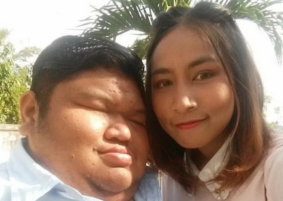 """""""He's fat and UGLY but I love him,"""" slim girl shows off her 120kg boyfriend (photos)"""