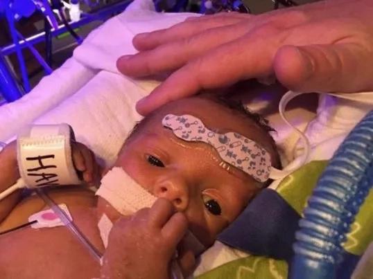 Conmovedora imagen de recién nacido diciendo adiós a su gemelo