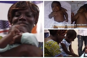 Miracle! Baby who had successful surgery to remove parasitic conjoined TWIN returns home (photos, video)