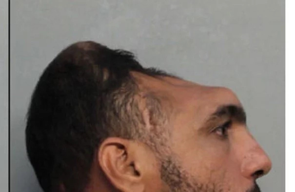 "Guy's Mugshot With A ""Half & A Head"" Is The Scariest Thing (Photo)"