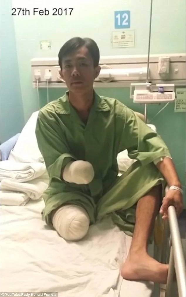 Lucky! Man, 35, survives huge crocodile attack but LOSES hand and leg (photos)