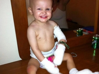 Doctors wanted to perform four amputations on a toddler but his parents said NO, thank goodness!