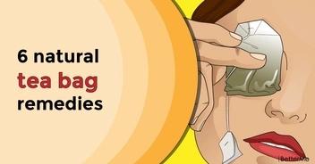 6 natural tea bag remedies