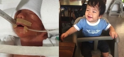 How this premature baby struggled to survive will make you believe in miracles