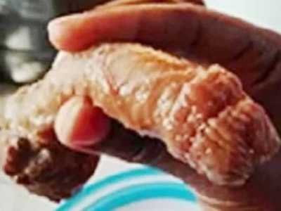 Woman Finds A Penis In Her Plate Of Pork Chops At Restaurant