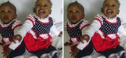 Heartwarming photos of the delicate operation to separate conjoined twins at Kenyatta National Hospital