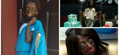 Story of first black girl trapped in body of pensioner who surpassed her life expectancy to celebrate 18th birthday (photos, video)
