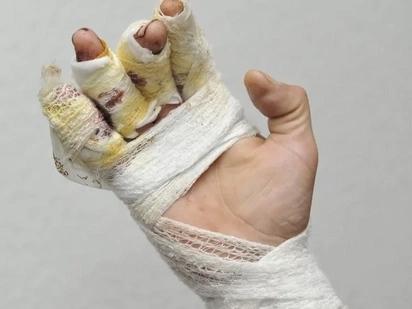 Man Left Mutilated After Horrifying Clown Attack