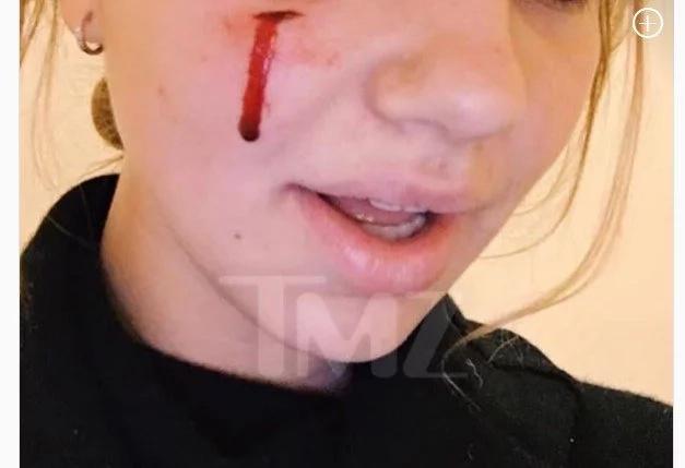 Obama's dog bites teen girl on face at White House (photos)