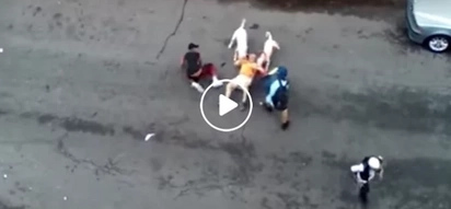Nakakatakot! 62-year-old man near dead after brutally attacked by vicious pitbulls