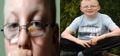 Niño, de 11 años que perdió la audición a los 9, vuelve a escuchar después de un tapón de algodón salió de su oído