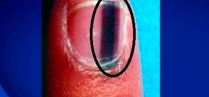 Ésto es lo que quiere decir cuando alguien tiene una línea negra así en la uña