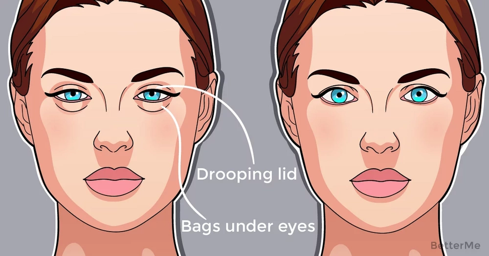6 natural ways that can help tighten your loose eyelids