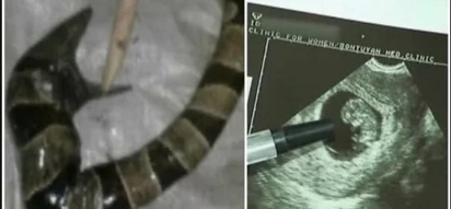 WATCH: This woman just gave birth to a snake