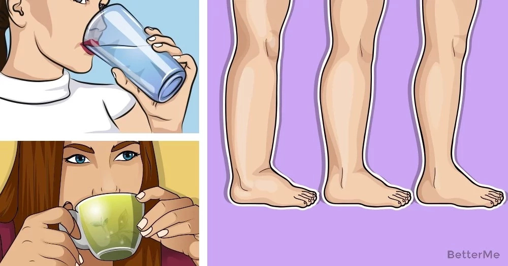 8 tips on how to get rid of edema in legs naturally