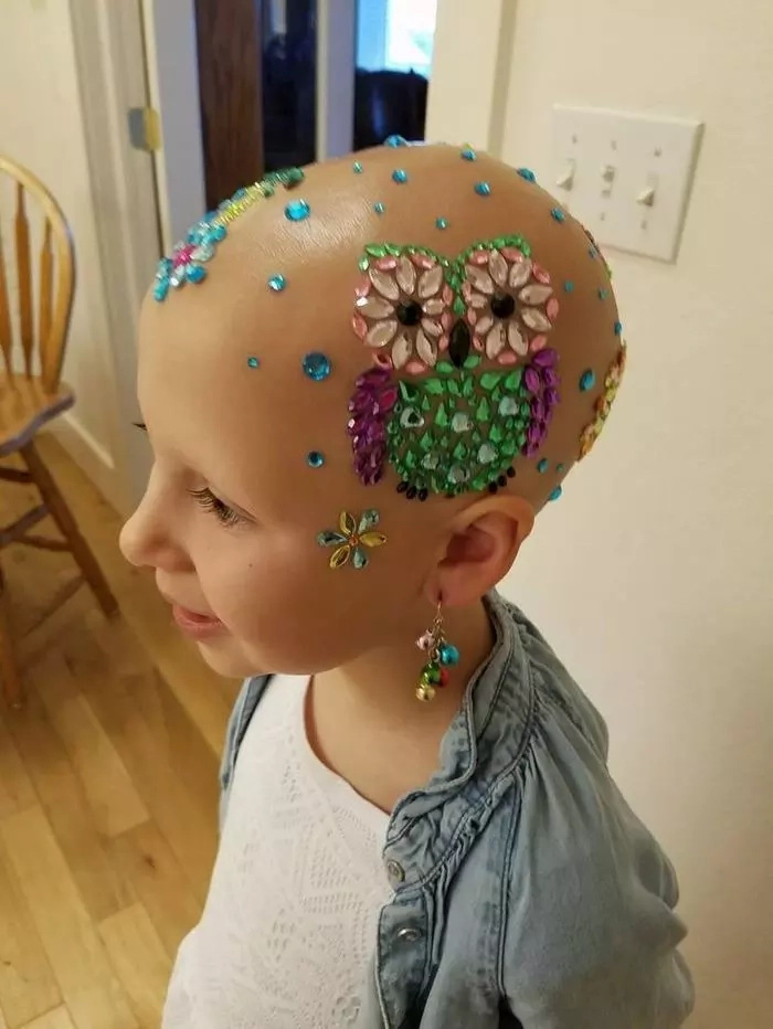 Shine bright! 7-year-old girl loses ALL her hair but keeps smiling and dazzling everyone (photos)
