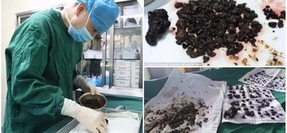 Doctors remove over 200 stones from woman's body in a single operation