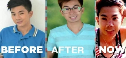 Model turned intonHalloween character after his P500 nose job went wrong