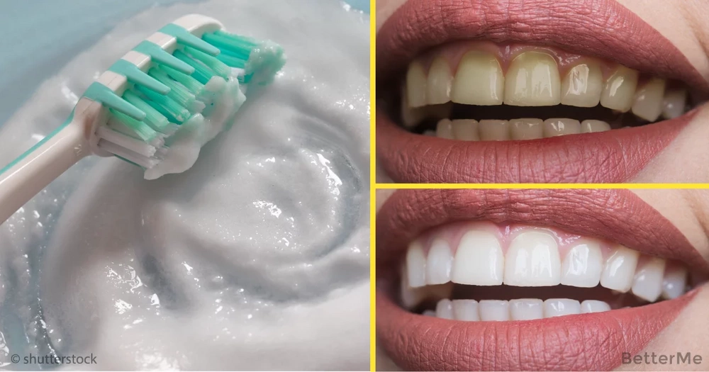 Top-10 ways can help you whiten yellow teeth at home