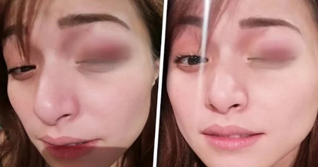 Christine Reyes suffers from a bruise during taping