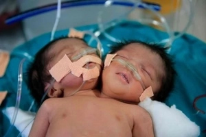 She expected one baby, but instead got two girls in one body, but with two heads! PHOTOS