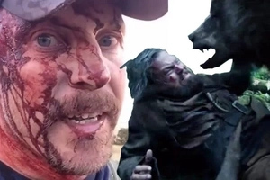 Hiker Escapes A Grizzly Bear Attack And Tells The Horrifying Story