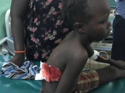 Turkana ODM politician's daughter shot (photos)
