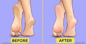 This remedy will heal your cracked heels in 2 weeks!