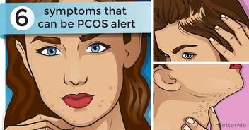 6 symptoms that can be PCOS alert