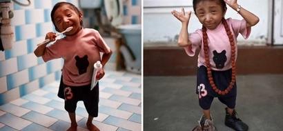 El hombre más pequeño del mundo es de Nepal