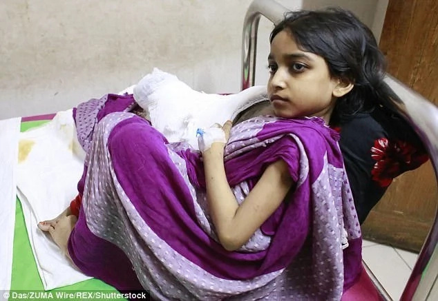 She is just one of six people with the rare condition around the world. Photo: Das/ZUMA Wire/REX/Shutterstock