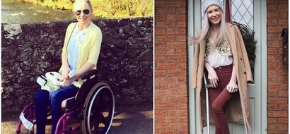 Bewilderment as rare genetic condition slowly turns twin sisters into a stone