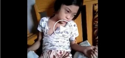 Young girl suffers from brain tumor, her video will break your heart