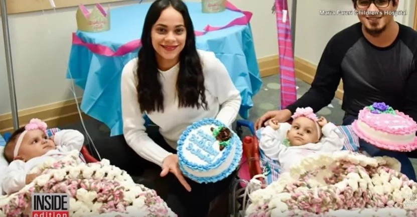 Conjoined twins separated in 21-hour surgery celebrate their FIRST birthday (photos, video)