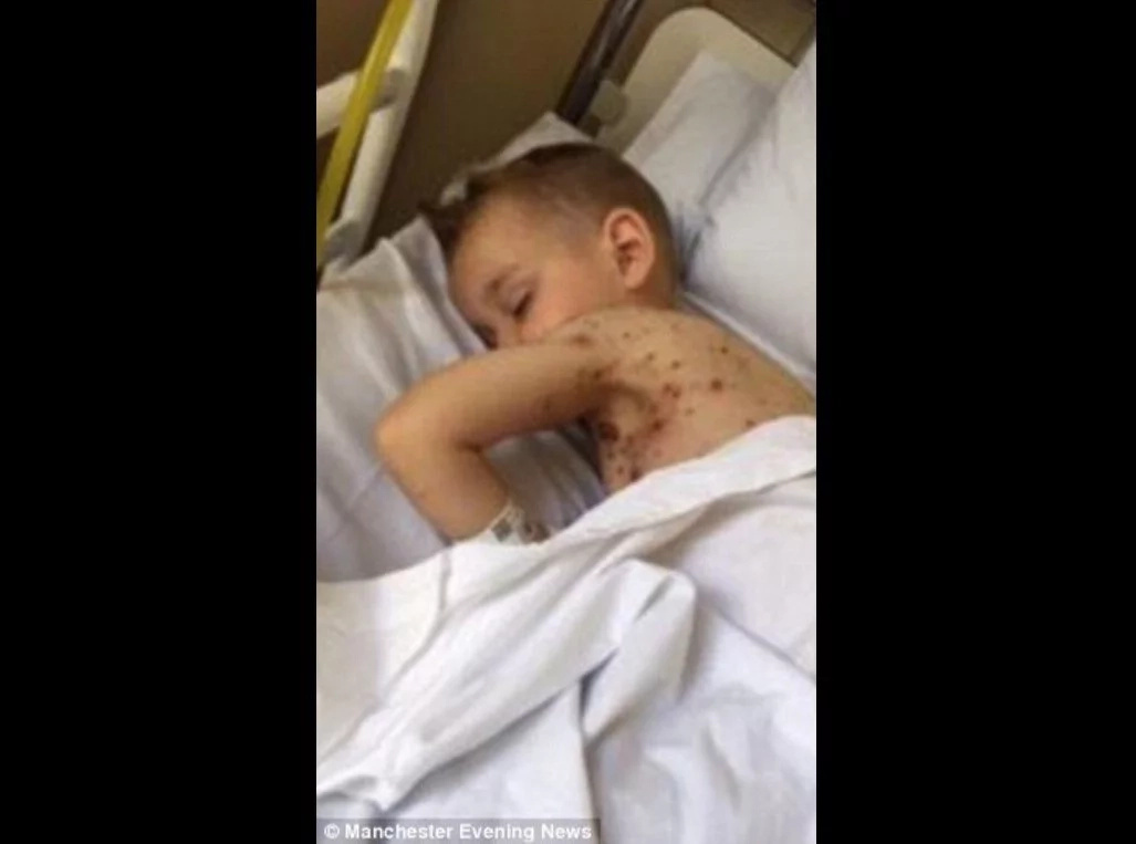 Horrifying Pictures Show Why You NEVER Give A Child Ibuprofen